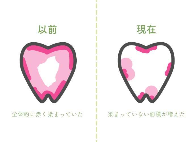 歯垢染色液で歯垢のつき方ビフォーアフター