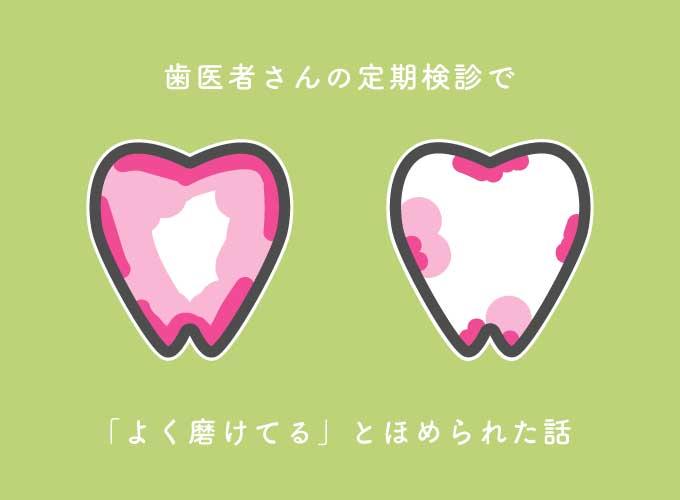 歯医者さんの定期検診で「よく磨けてる」とほめられた話